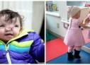 VIDEO: O nouă față pentru o fetiță de doi ani din SUA